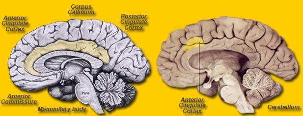 Anatomy of schizophrenia